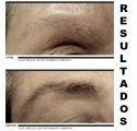 M2 BROWS CRECIMIENTO DE CEJAS - Renewing Sérum