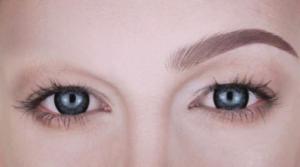 alopecia en las cejas