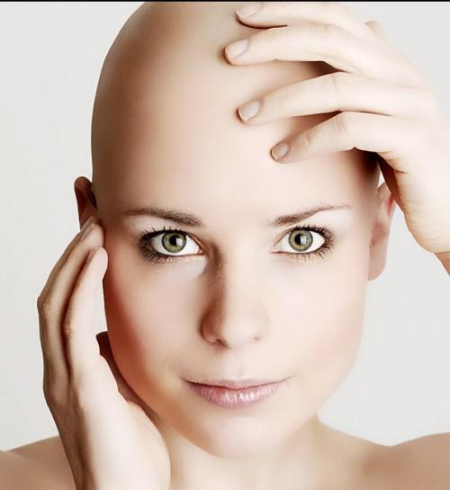 alopecia en cejas