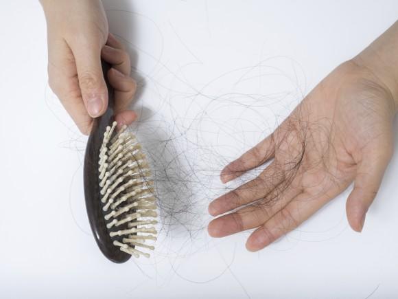 alopecia por radioterapia