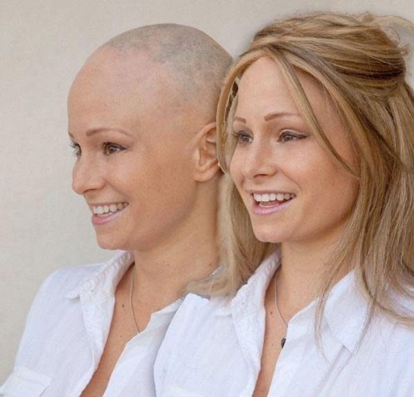 alopecia plaquitaxel