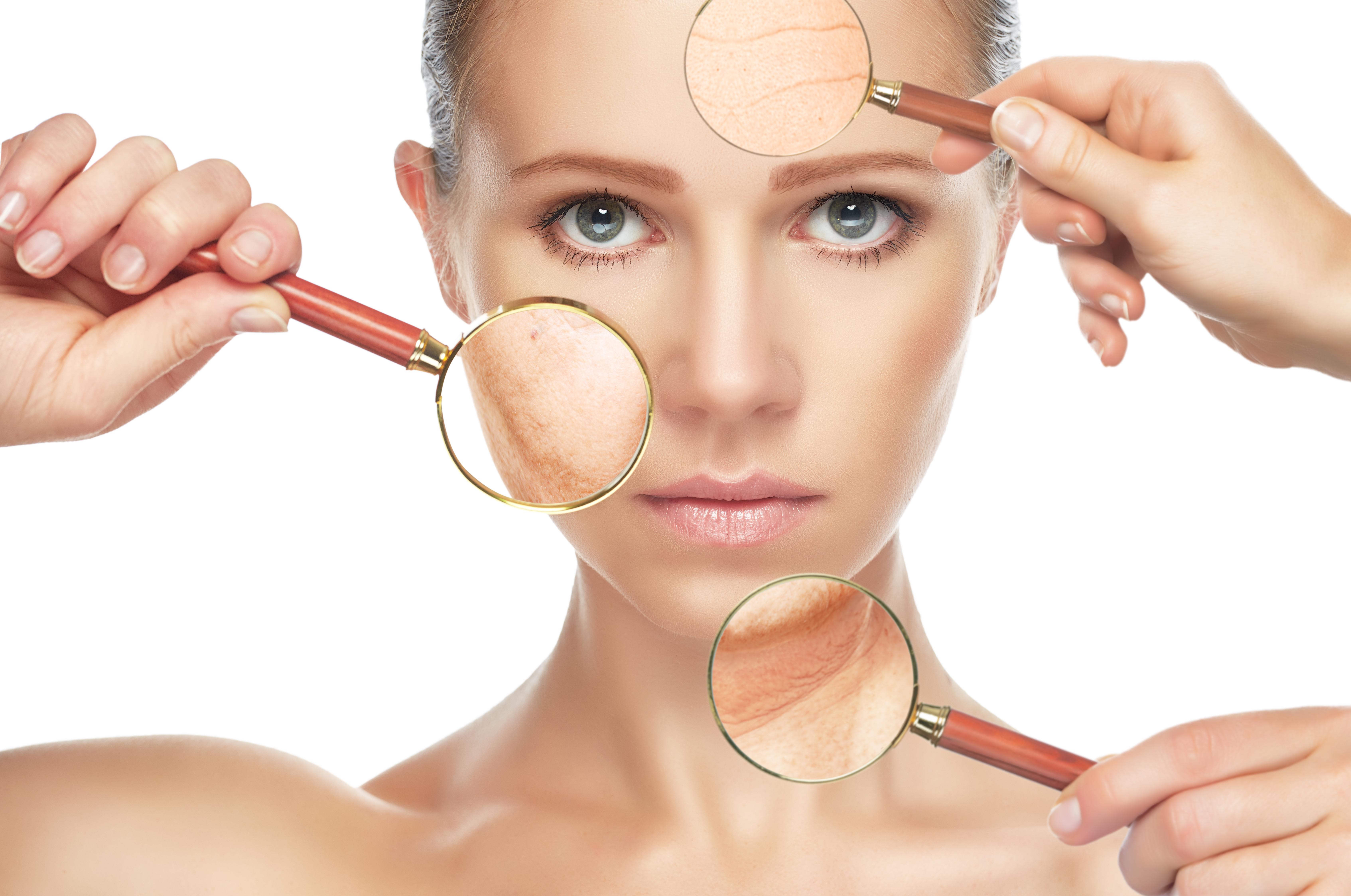 efecto quimio en la piel