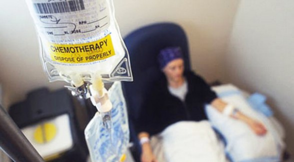 efectos por quimioterapia