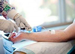 empiezo con quimioterapia