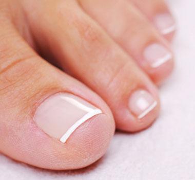 lesiones en las uñas