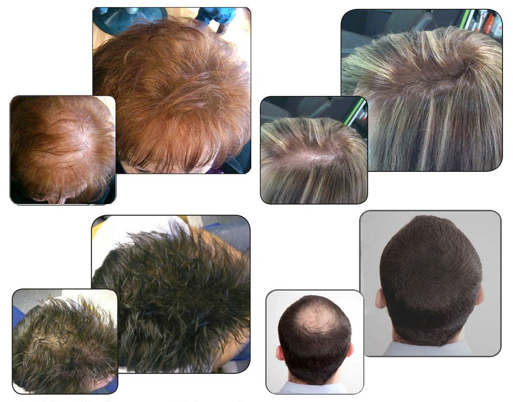 dermahair-volume-hair-ejemplo.jpg